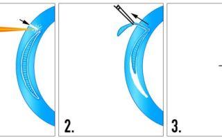 Ласик или фемтоласик: сравнение методов коррекции и что лучше