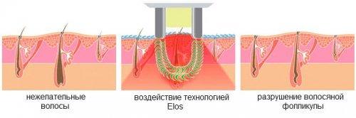 Элос эпиляция или лазерная эпиляция: сравнение методов и что лучше