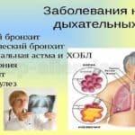 Флемоксин или Флемоклав — в чем разница и что лучше