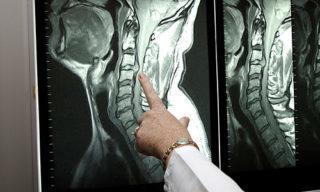Какая процедура лучше МРТ или КТ гортани?