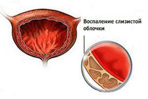 Уролесан и Канефрон: сравнение препаратов и что лучше
