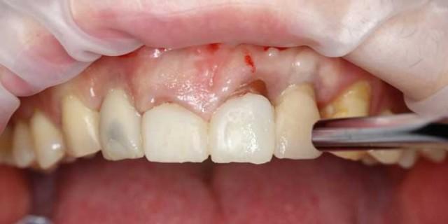 Что лучше штифт или коронка на зуб: особенности и различия
