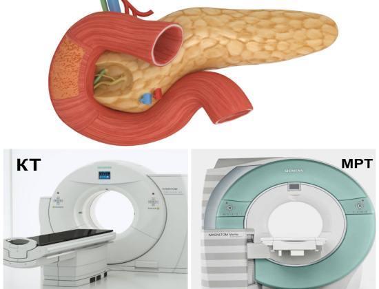 Какой метод диагностики поджелудочной железы лучше МРТ или КТ