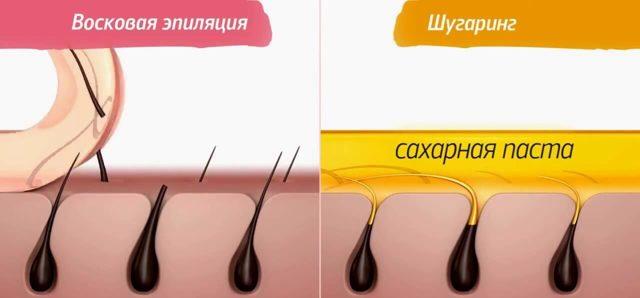 Чем отличается восковая эпиляция(ваксинг) от шугаринга