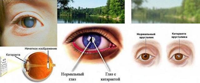 Какие глазные капли лучше Таурин или Тауфон?