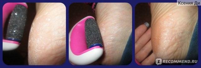 Чем отличается розовая пилка шолль (scholl) от голубой